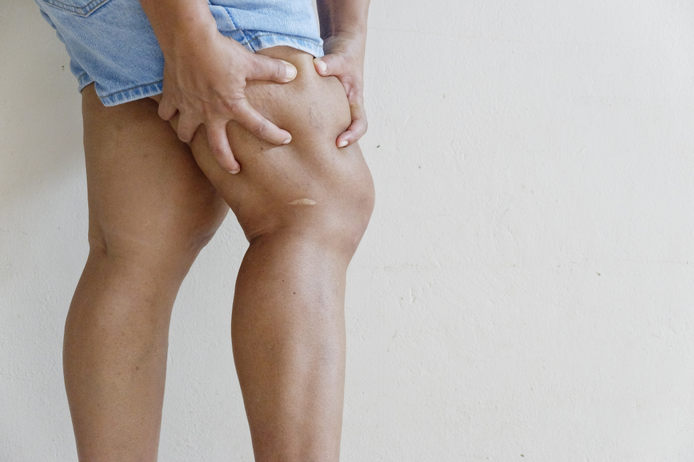 how-can-i-reduce-my-risk-for-blood-clots-in-my-legs?