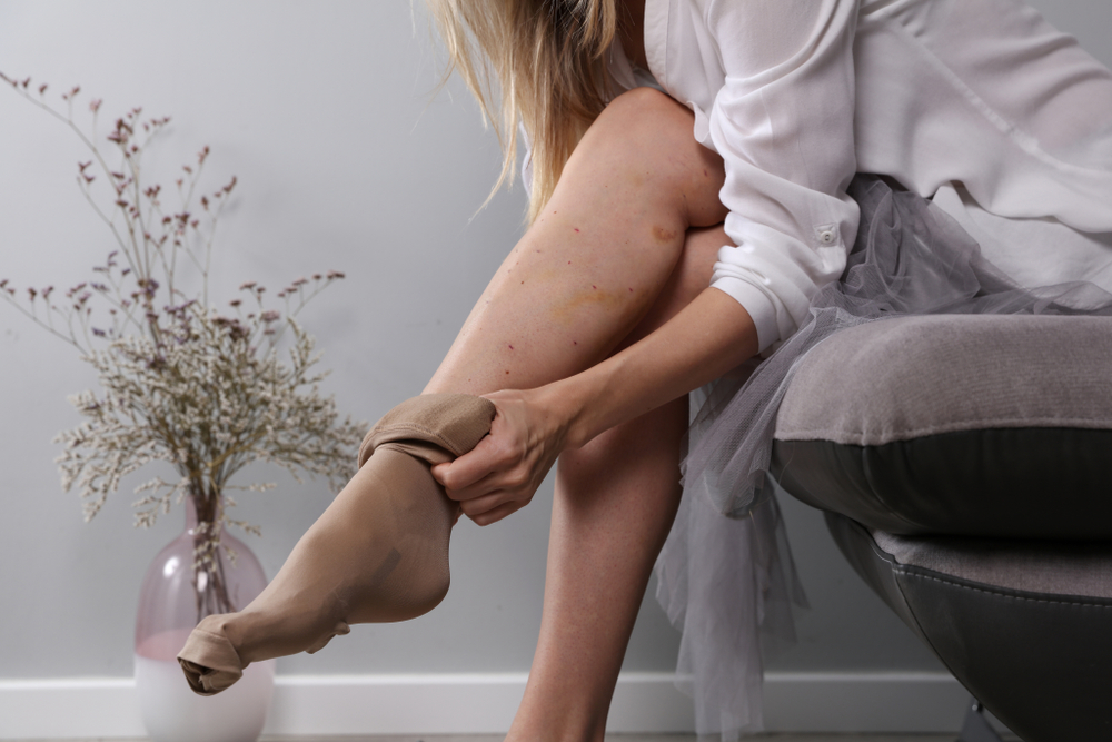 compression-stockings:-what-are-they-&-do-they-really-work?